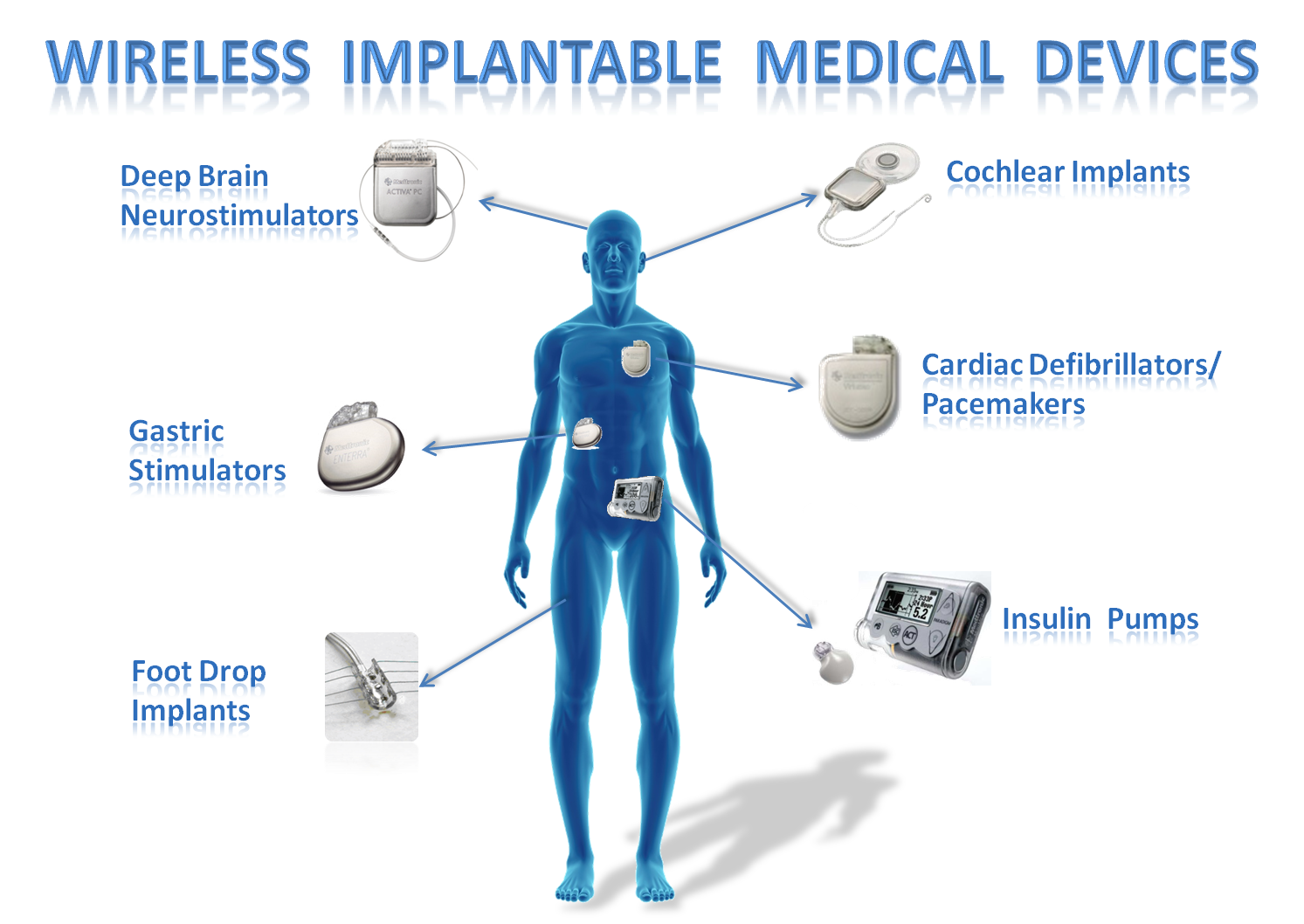 an analysis of the pain medicine and the implantable infusion devices practicing A complete guide to implantable and interventional pain and pain medicine at harvard to better understand how implantable devices for the management.