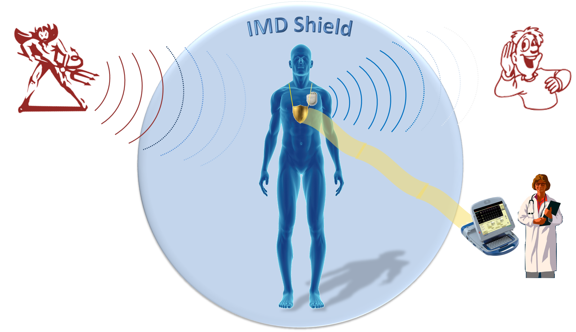 IMD Shield: Securing Implantable Medical Devices